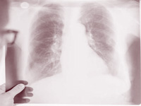 Even non-smokers can contract COPD