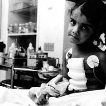 Bhopal Gas Disaster